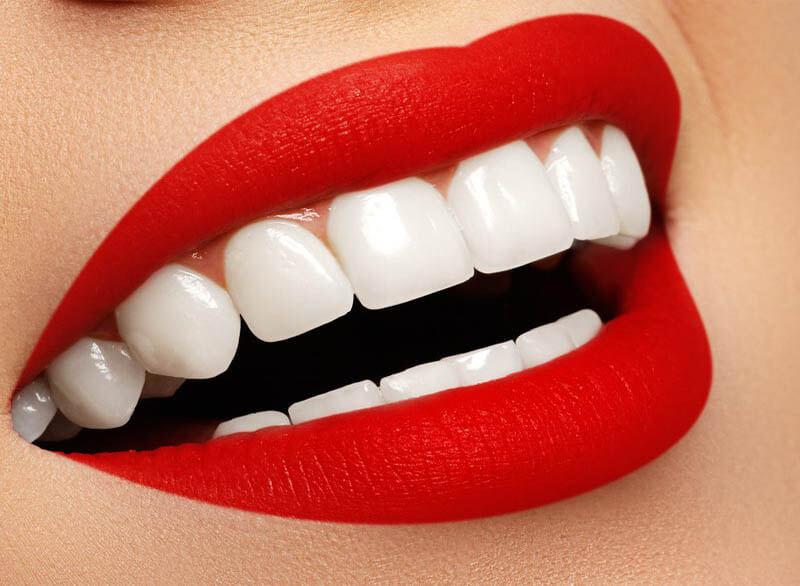 لمینت دندان قیمت