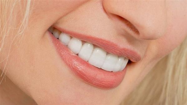 لمینت دندان اقساطی