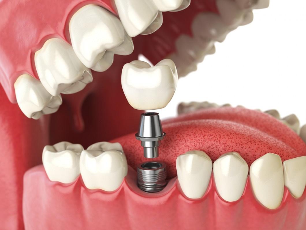 ایمپلنتهای دندانی