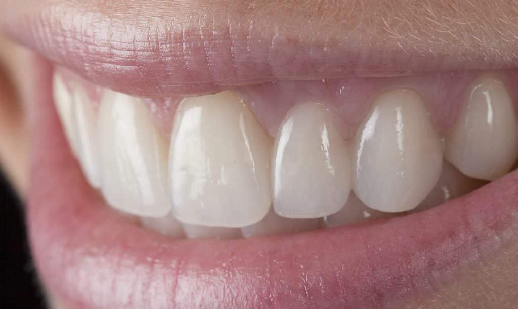 ترمیم دندان بدون تاج