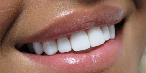 ترمیم و زیبایی دندان جلو و انواع روش های آن
