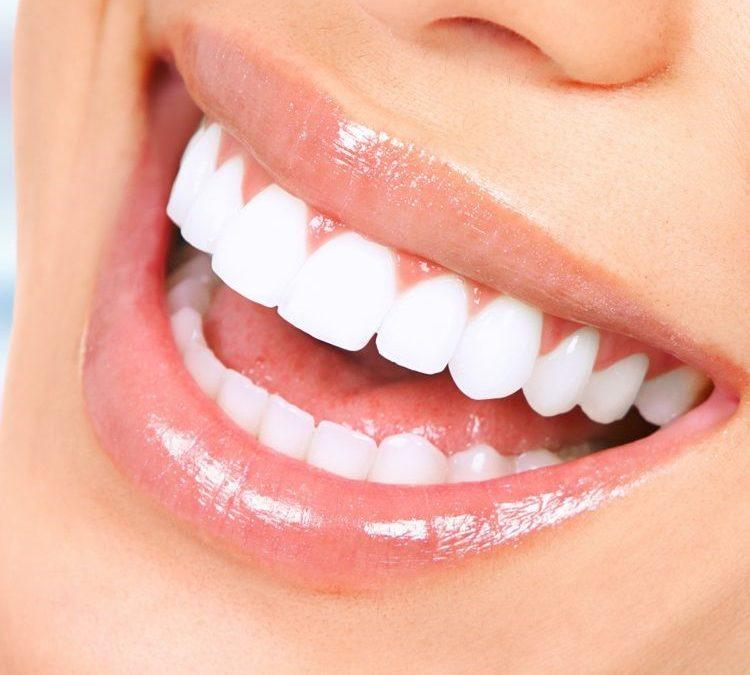 ونیر دندان و چه کسانی می توانند از آن استفاده کنند؟