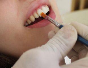 بلیچینگ دندان بهتر است یا کامپوزیت