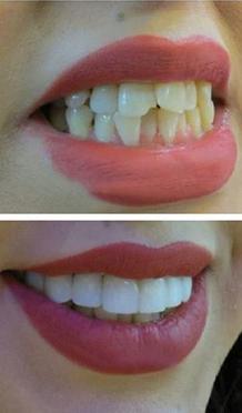 لمینت دندان ، قبل وبعد