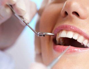 قیمت لمینت دندان در کرج