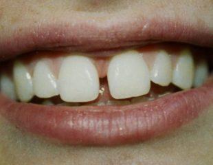 لمینت دندان خرگوشی