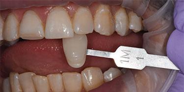 قیمت لمینت دندان در تهران