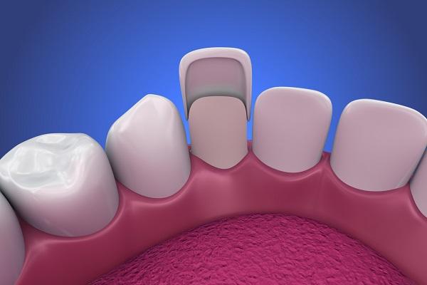 لمینت دندان های پایین