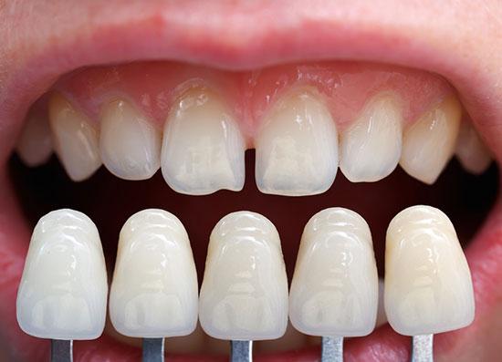 آخرین قیمت لمینت دندان