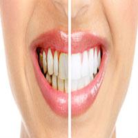 بهترین متخصص ترمیم و زیبایی دندان چه ویژگی هایی دارد؟