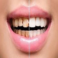 بلیچینگ دندان در کرج