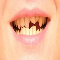 هزینه ترمیم و زیبایی دندان چقدر است؟