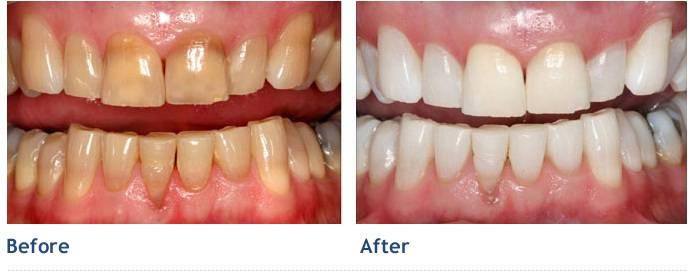 بهترین متخصص ترمیم و زیبایی دندان