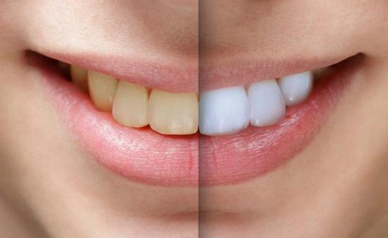 بلیچینگ دندان ارزان قیمت