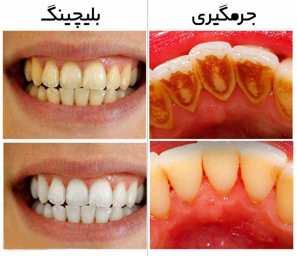 جرم گیری دندان-2