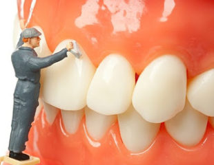 جرم گیری دندان-1
