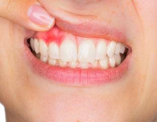 آبسه دندان-1
