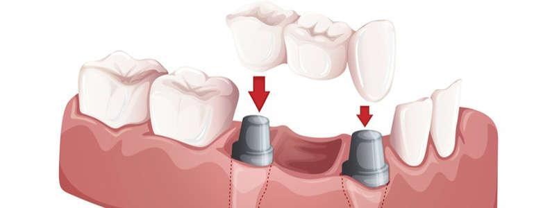 پل دندان-2