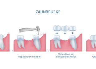 پل دندان-1