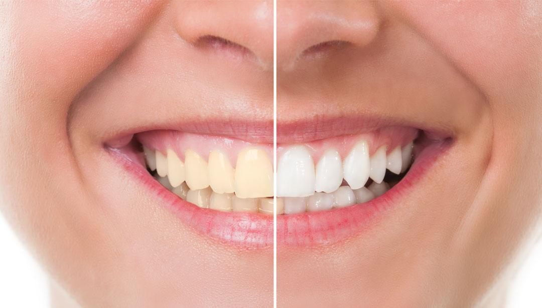 بلیچینگ دندانپزشکی-1