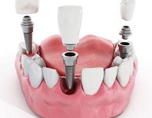 قیمت ایمپلنت دندان-1