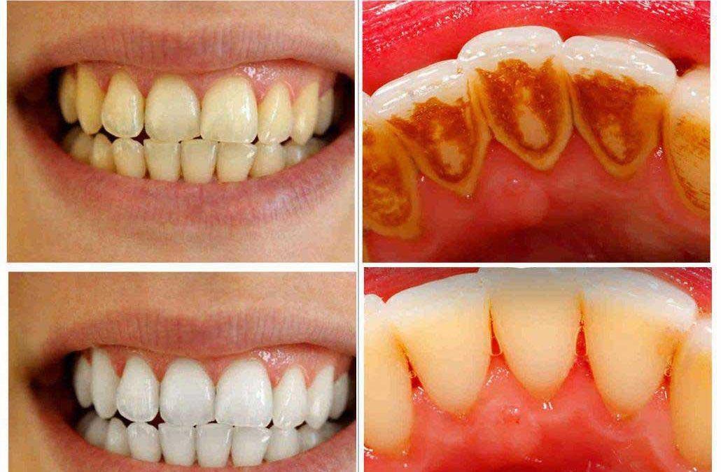 پک بلیچینگ دندان