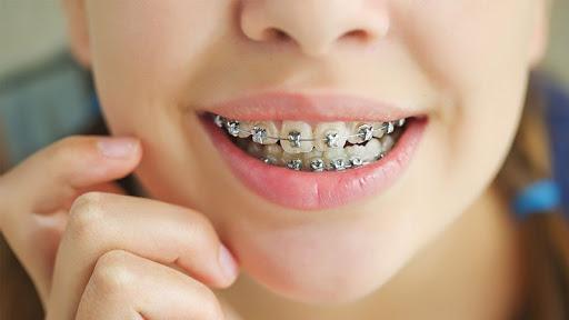 نحوه انجام ارتودنسی زیبایی دندان